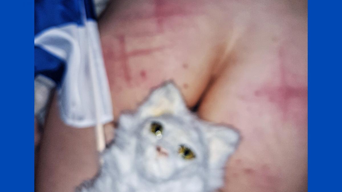 kuvassa ihmisen paljasta ihoa, jossa x:n muotosisia viiltoja. Vasemmalla näkyy osa Suomen lipusta. Etualalla valkoinen leikkieläin.